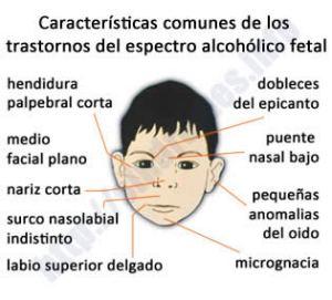 Síndrome del alcoholismo fetal (SAF)   Fun4us